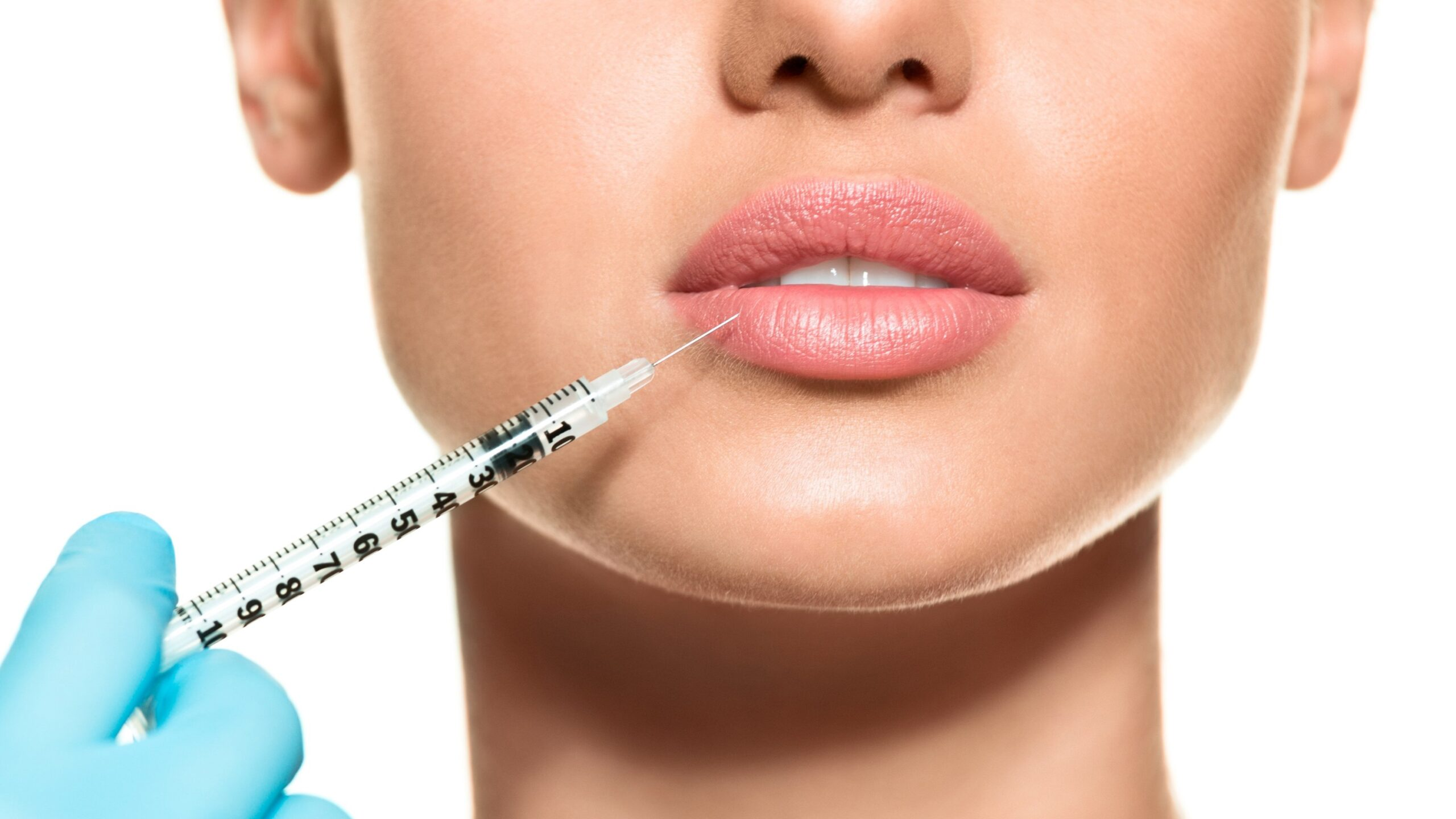 LIP FILLERS: ALL THAT YOU NEED TO KNOW