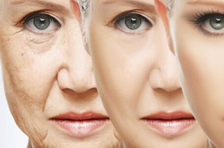 How Can You Prevent Skin Aging at Early Years – Learn Here
